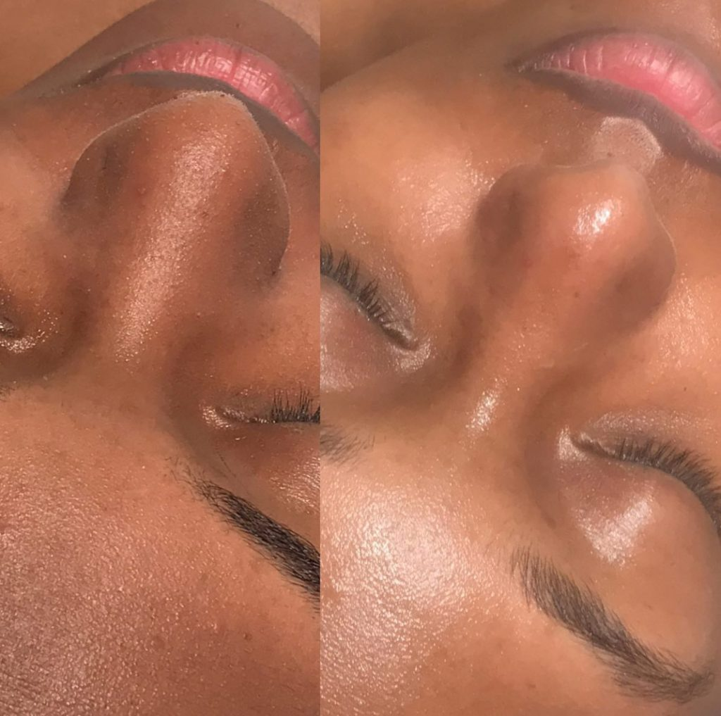 Facial Extractions professional
